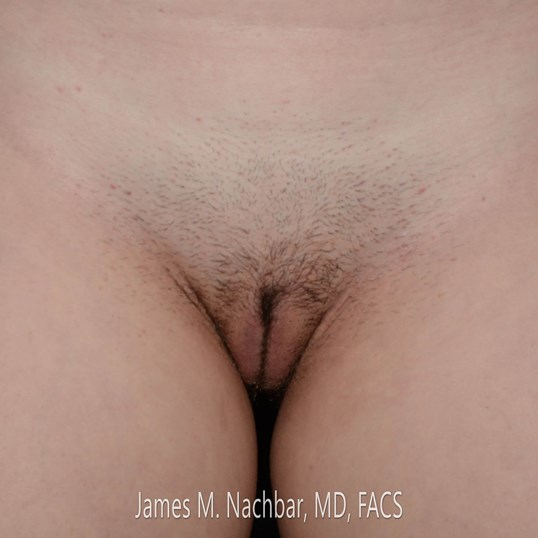 Labiaplasty, Front View 3 Months After