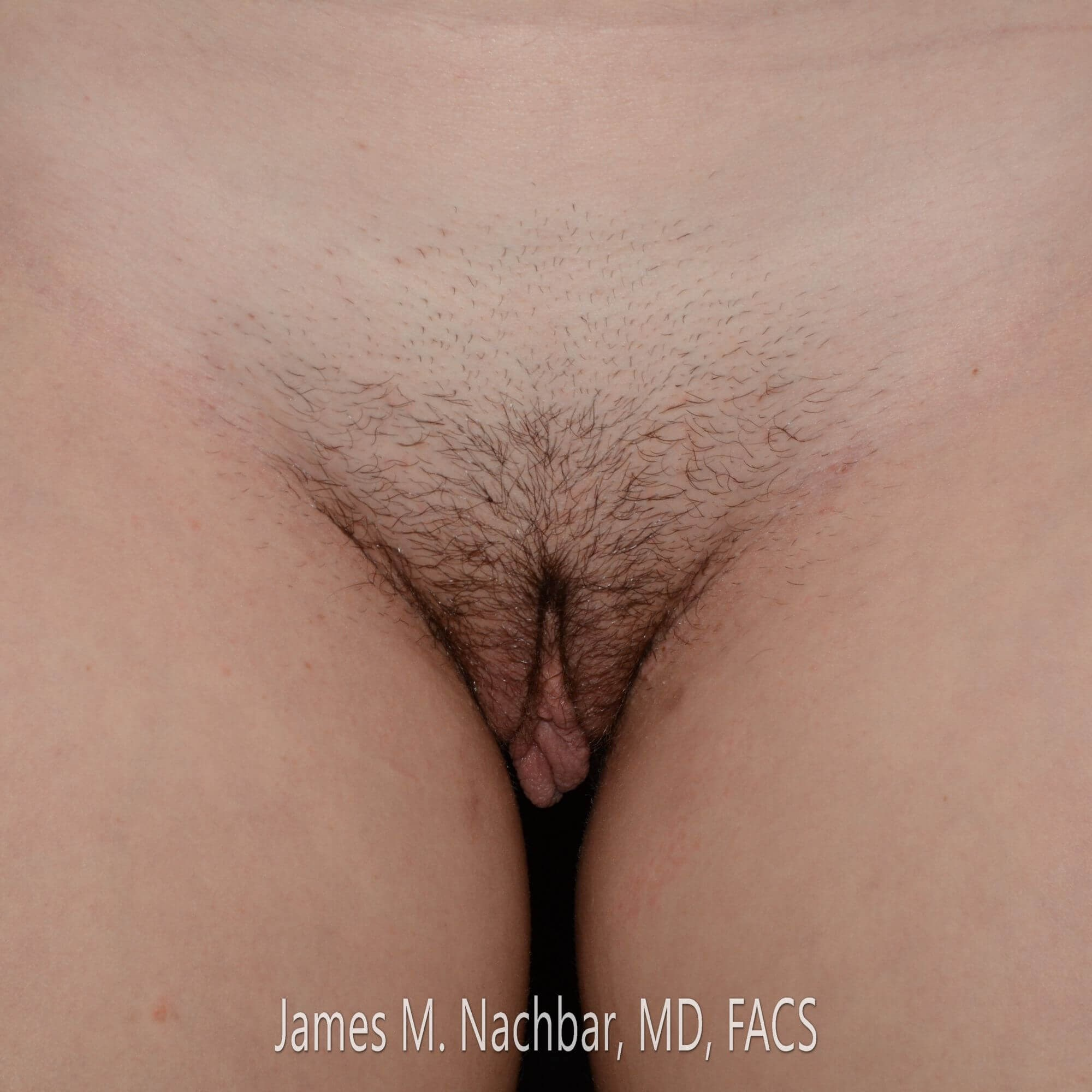Labiaplasty, Front View Before
