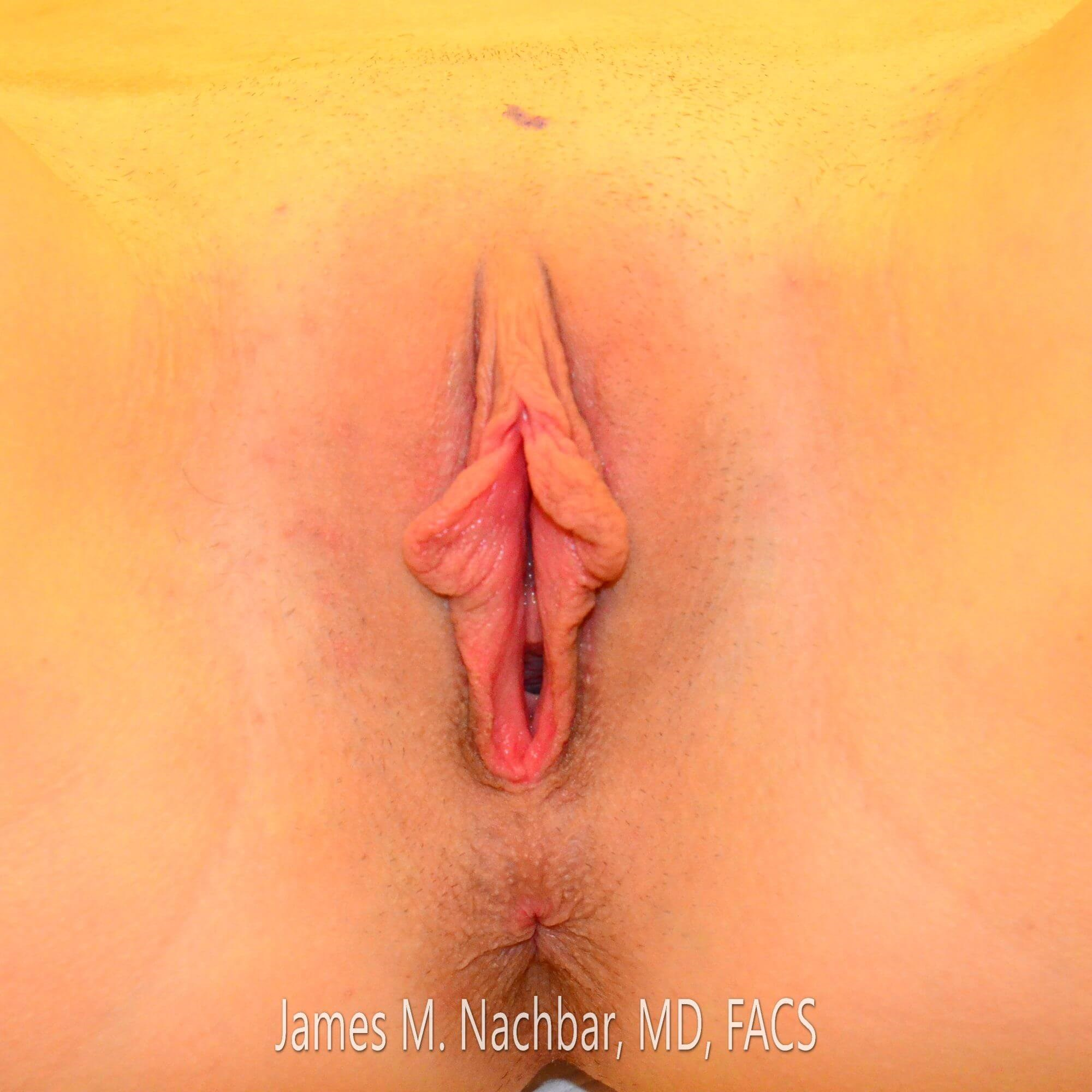 Wedge Labiaplasty, Direct View Before