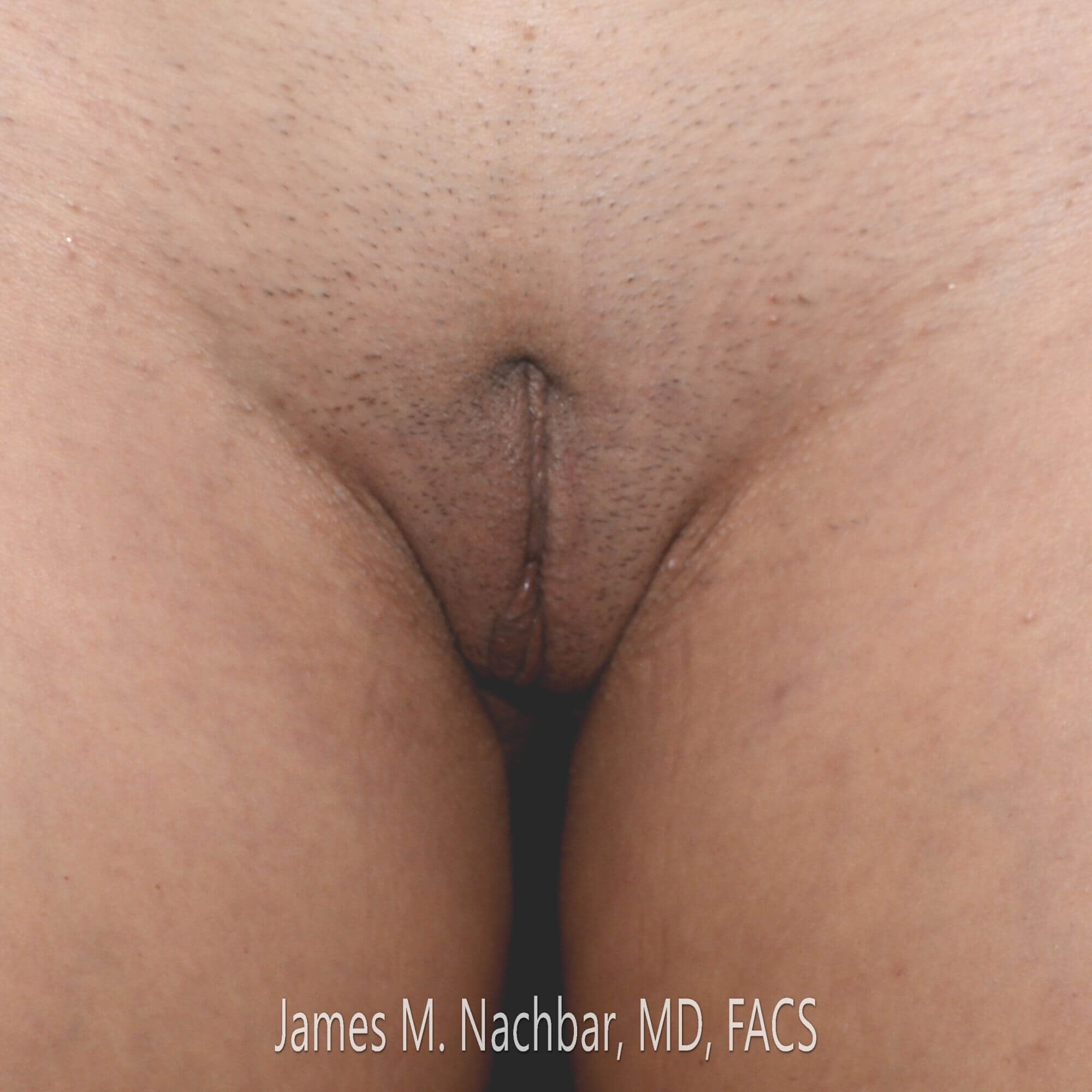 Wedge Labiaplasty, Front View Before