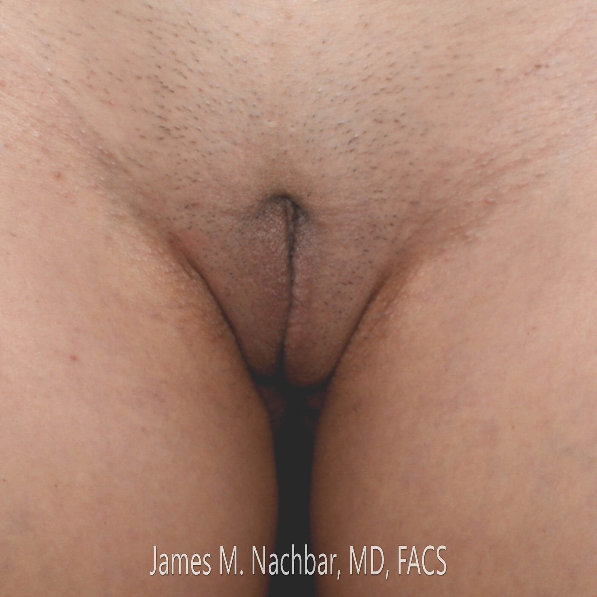 Wedge Labiaplasty, Front View 2 Months After