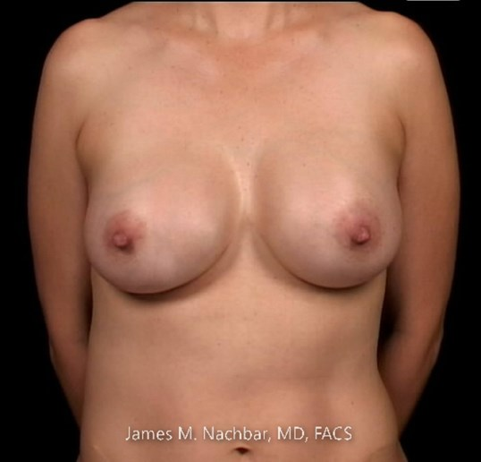Front View Breast 5 Years After