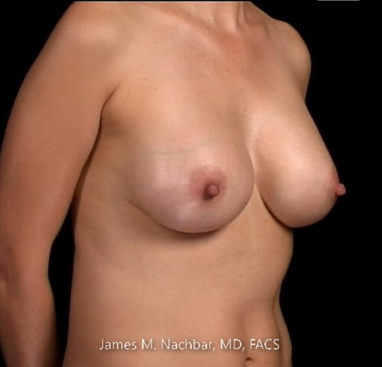 Angle View Breast 5 Years After