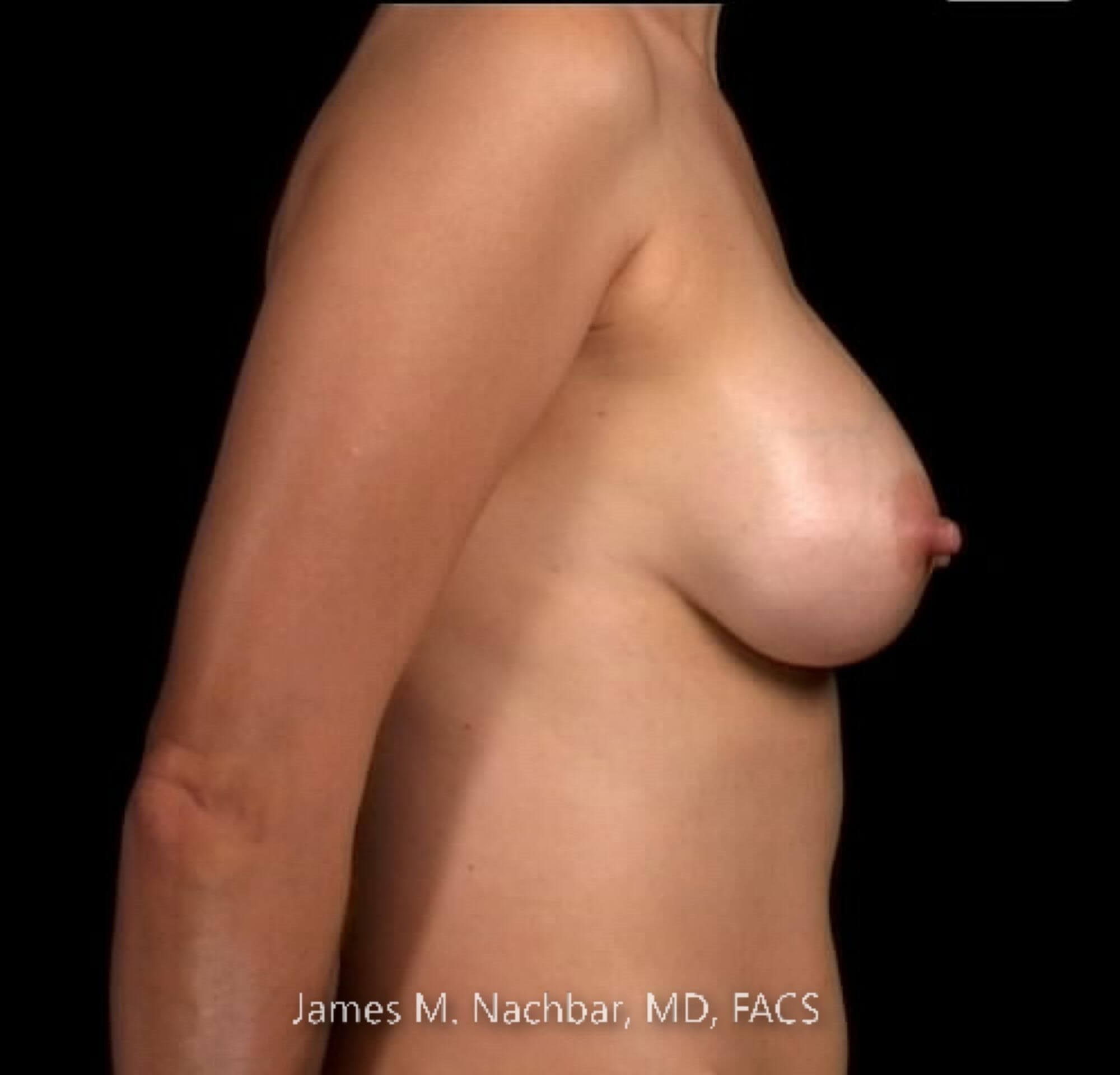 Side View Breast 5 Years After