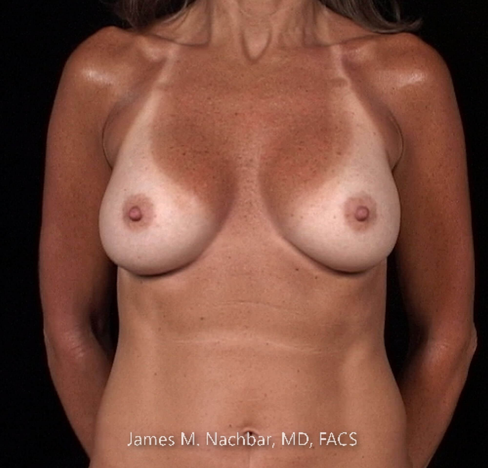 Front View Breast 1 1/2 Years After