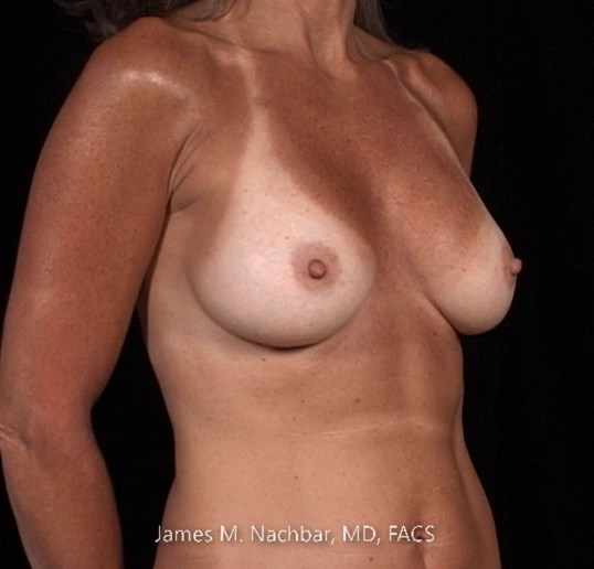 Angle View Breast 1 1/2 Years After