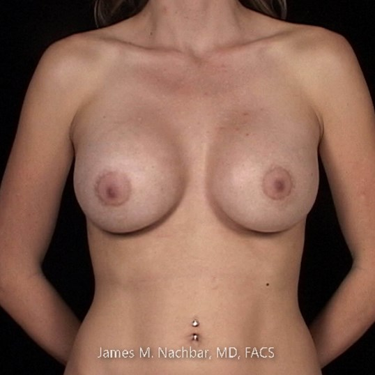 Front View Breast 2 1/2 Months After