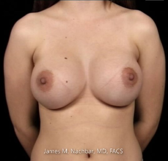 Front View Breast 7 Months After