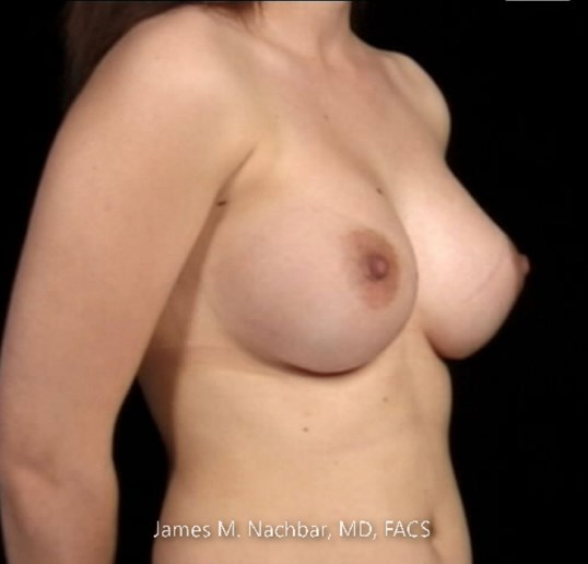 Angle View Breast 7 Months After