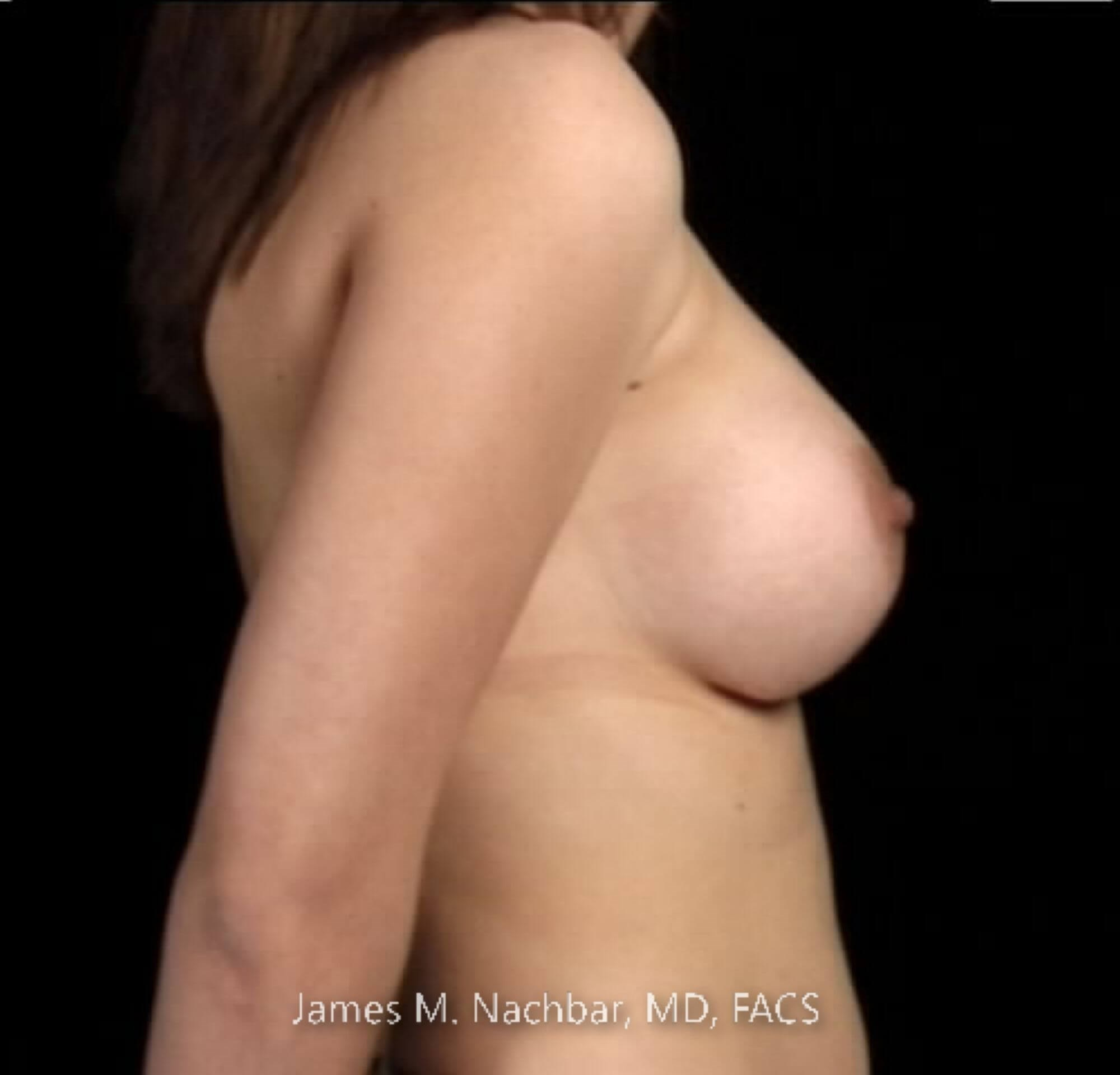 Side View Breast 7 Months After