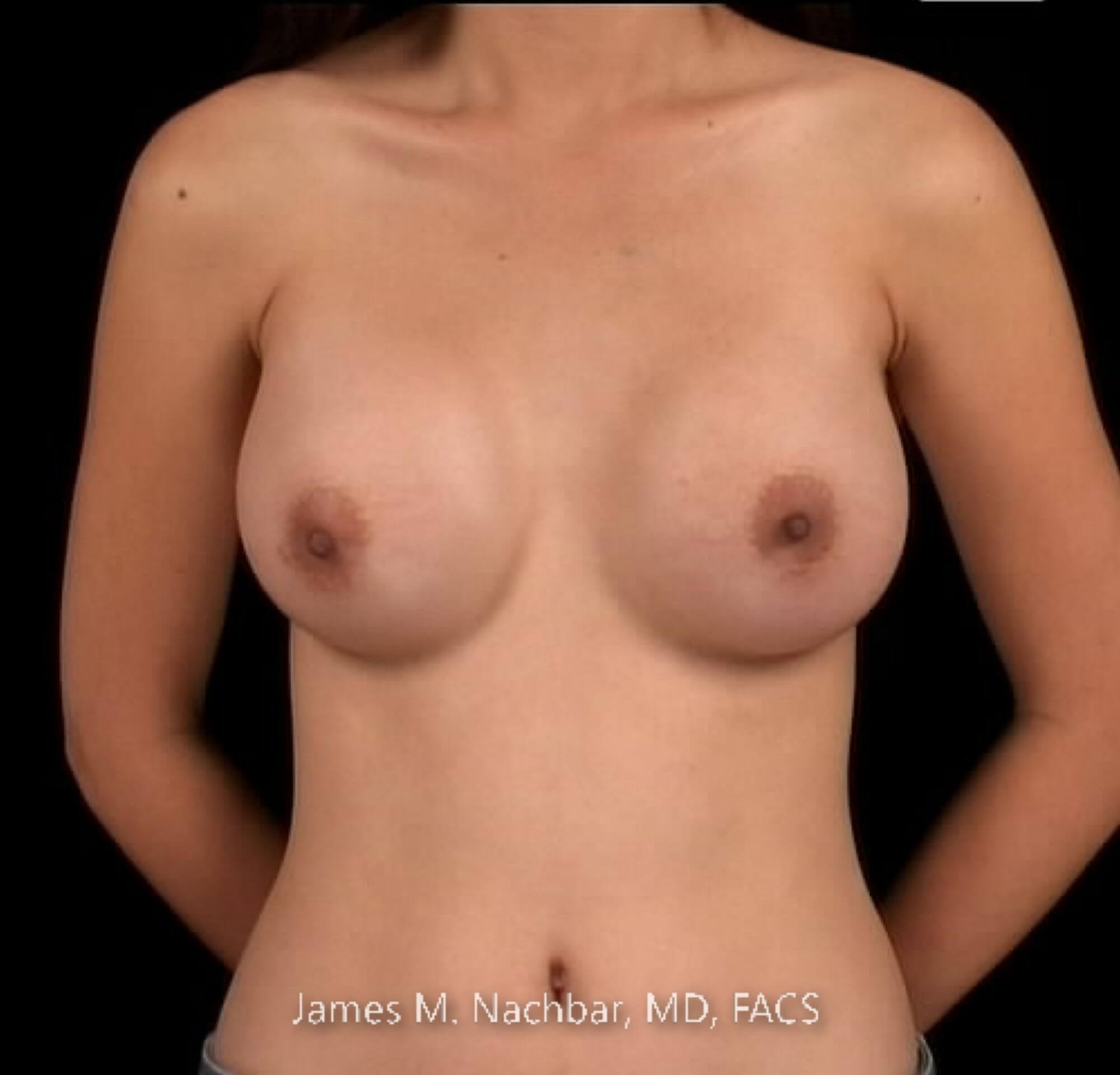 Front View Breast 1 Year After