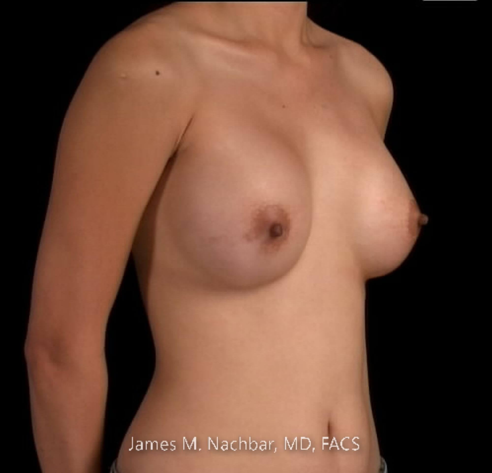 Angle View Breast 1 Year After