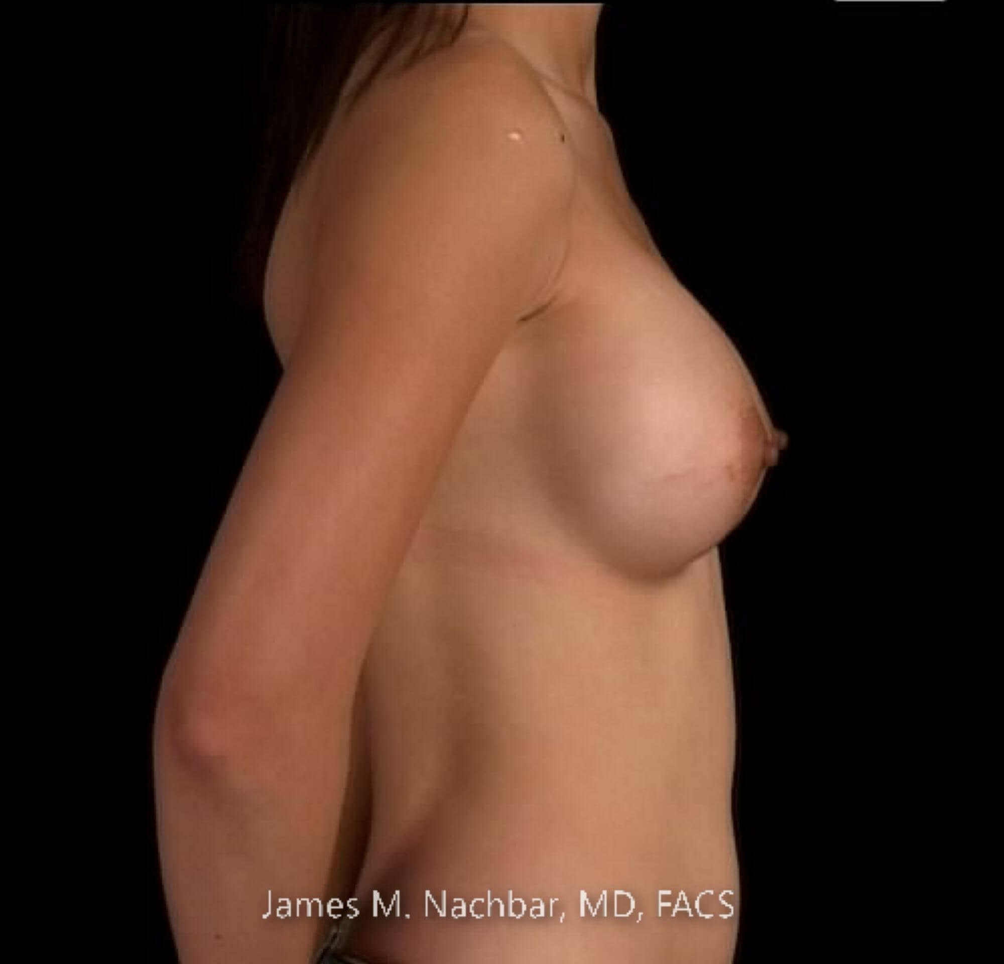 Side View Breast 1 Year After