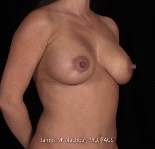 Angle View Breast 3 Months After