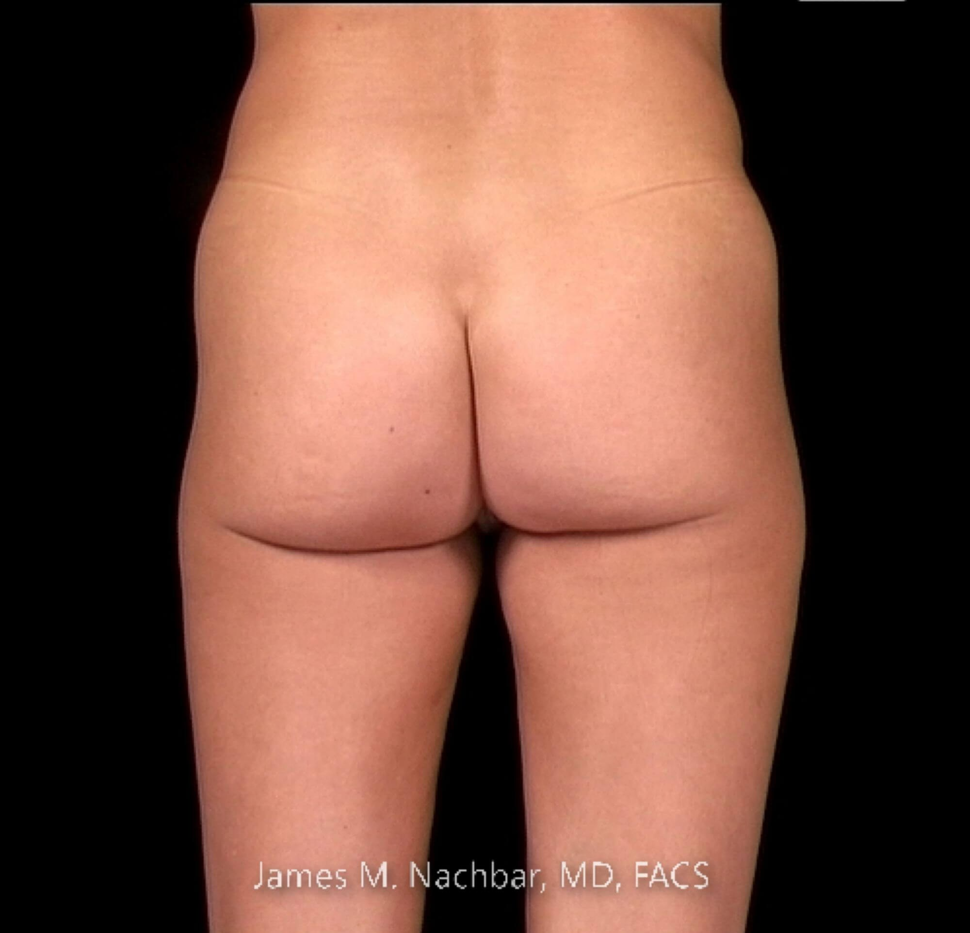Inner Thigh Liposuction Before