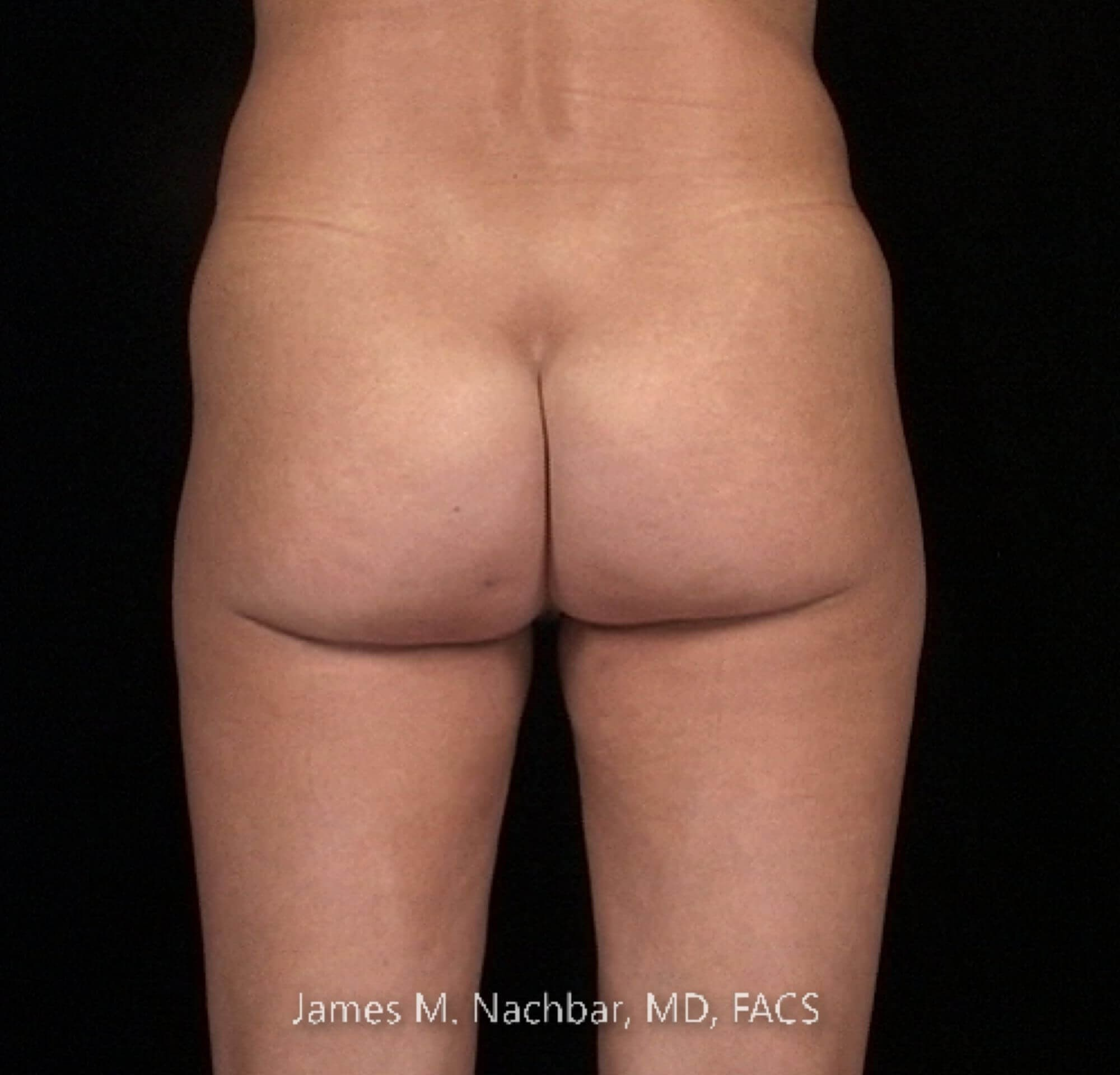 Inner Thigh Liposuction After