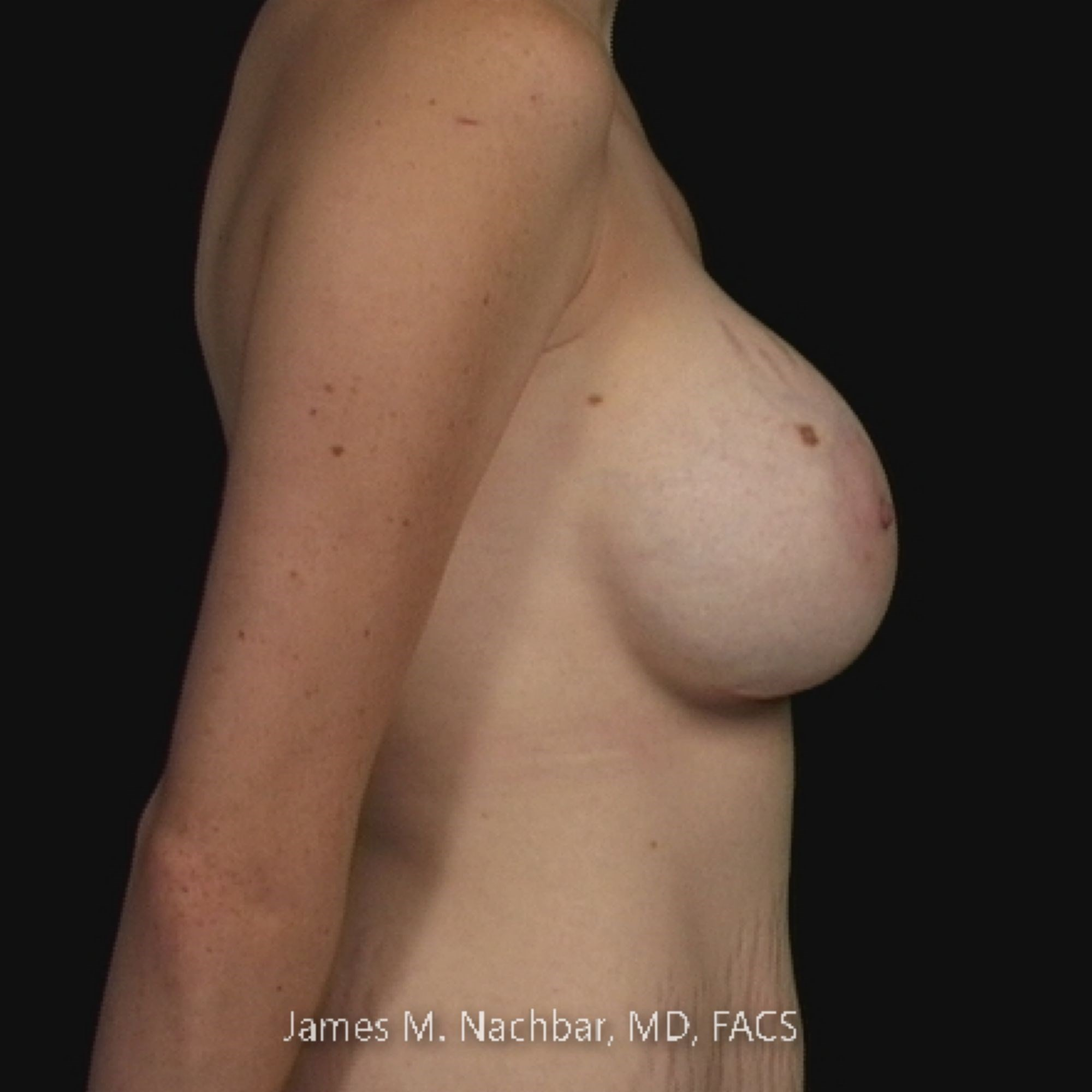 Side View Breast 2 Years After