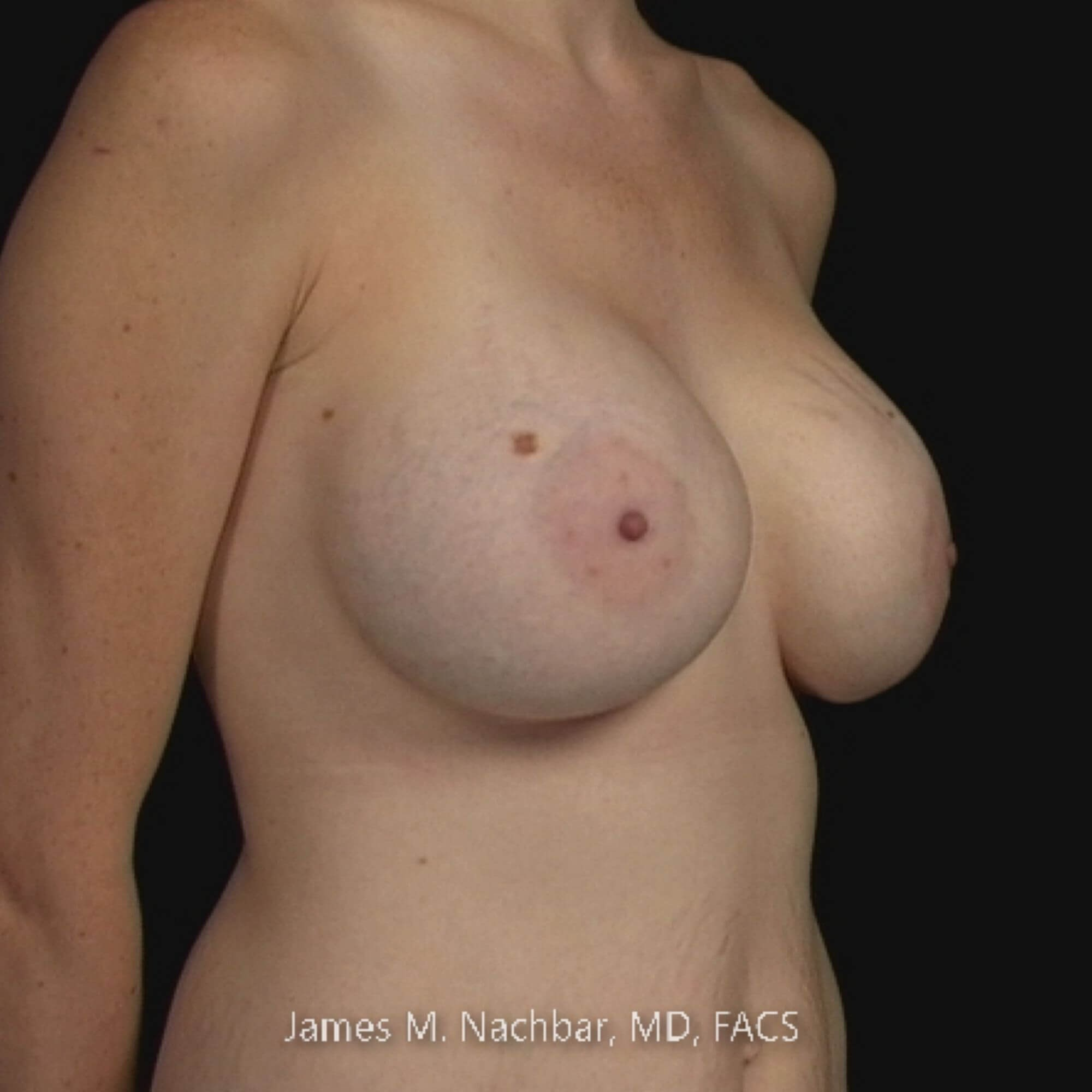 Angle View Breast 2 Years After