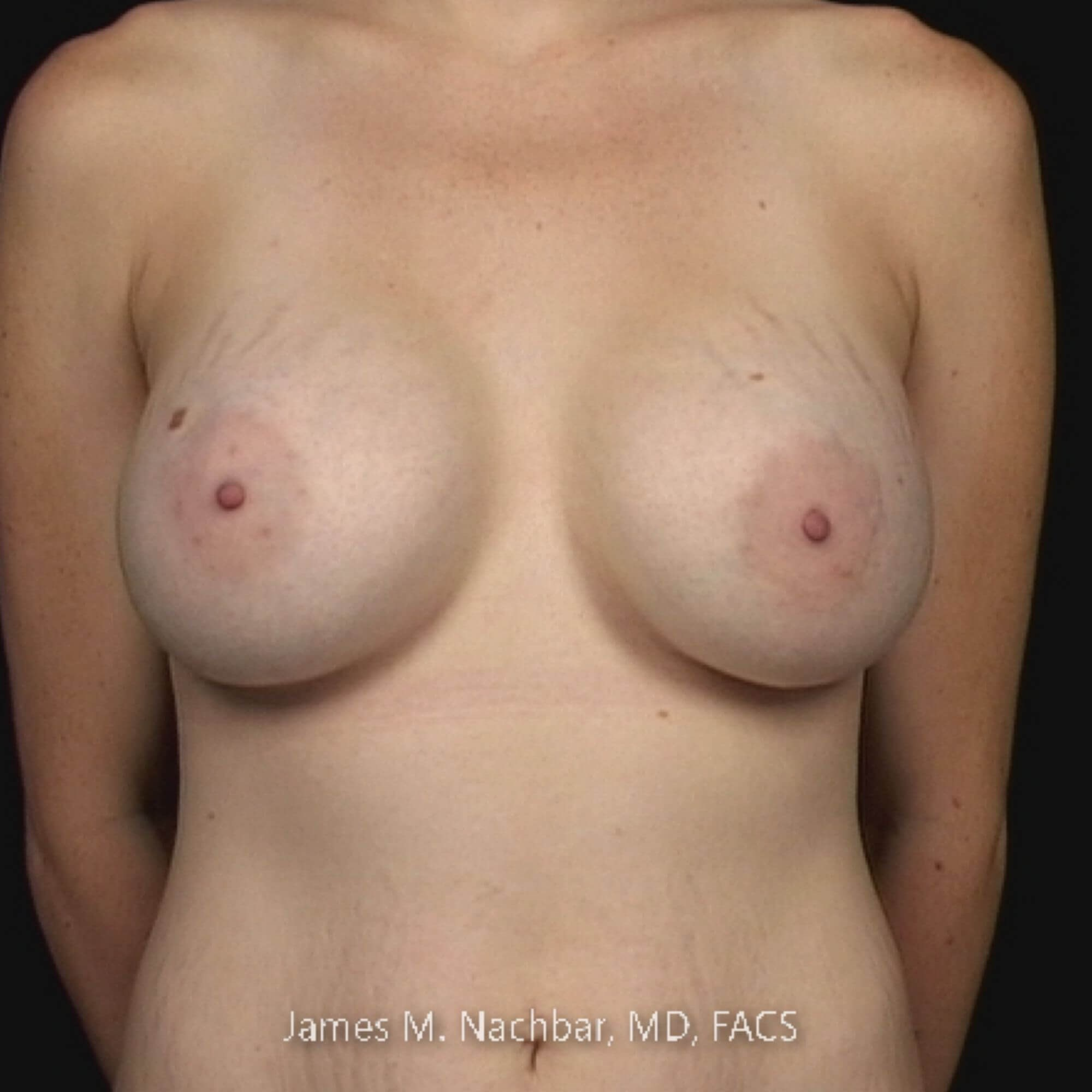 Front View Breast 2 Years After