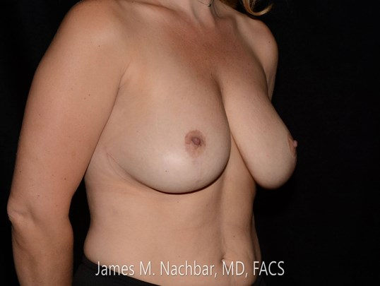 Angle View Breast After