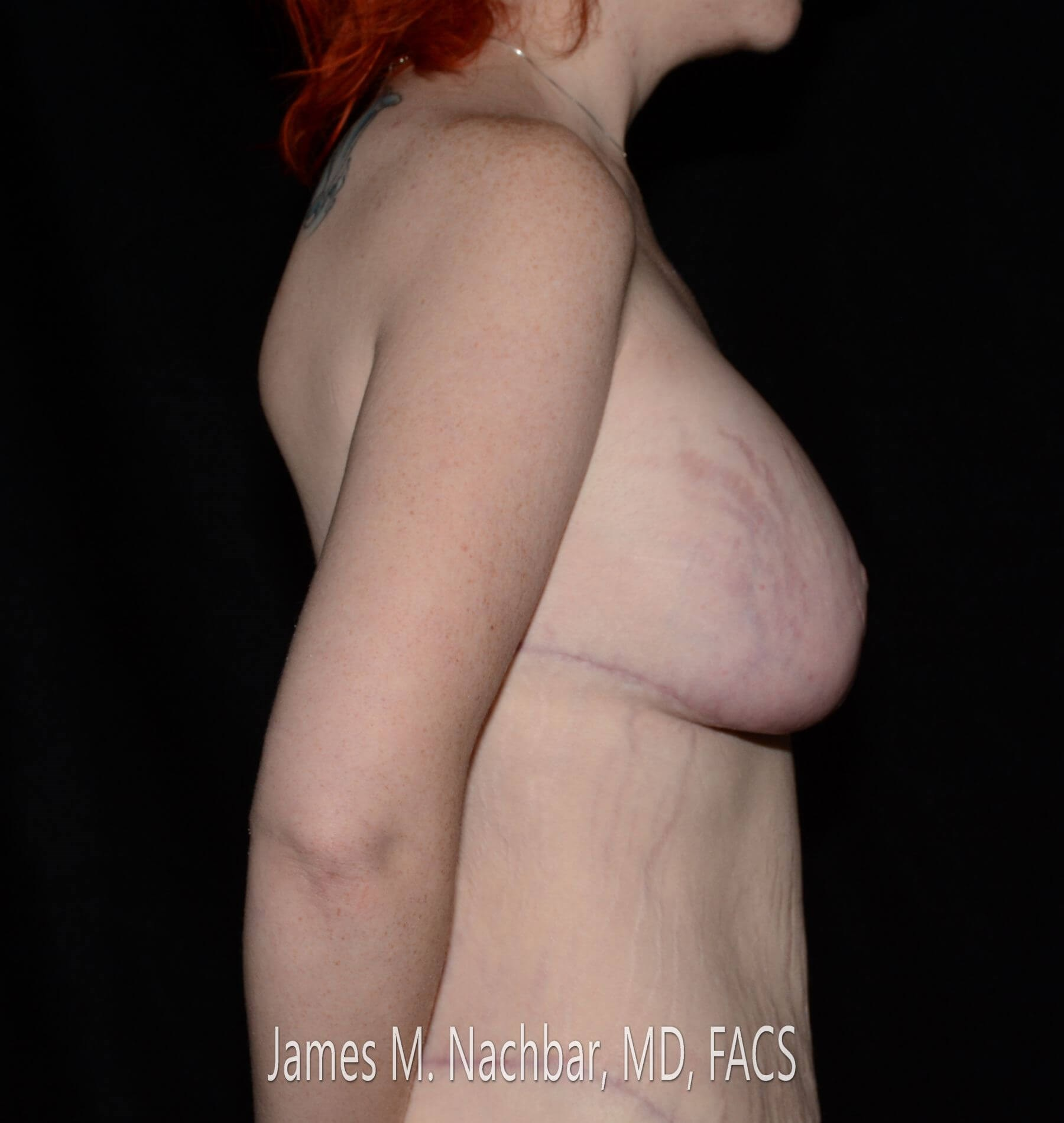 Side View Breast 3 Months After