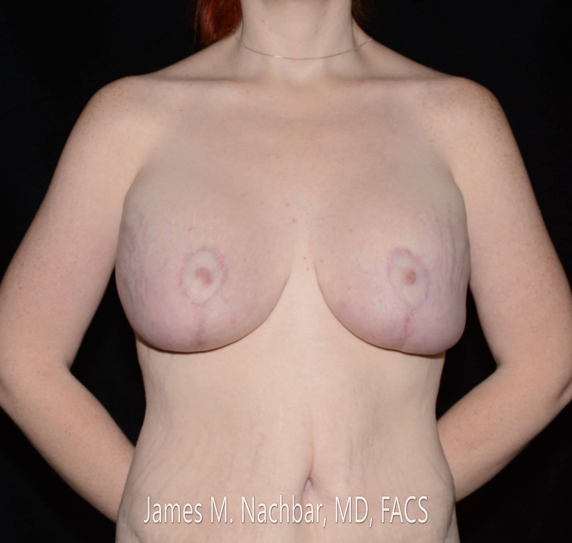 Front View Breast 3 Months After