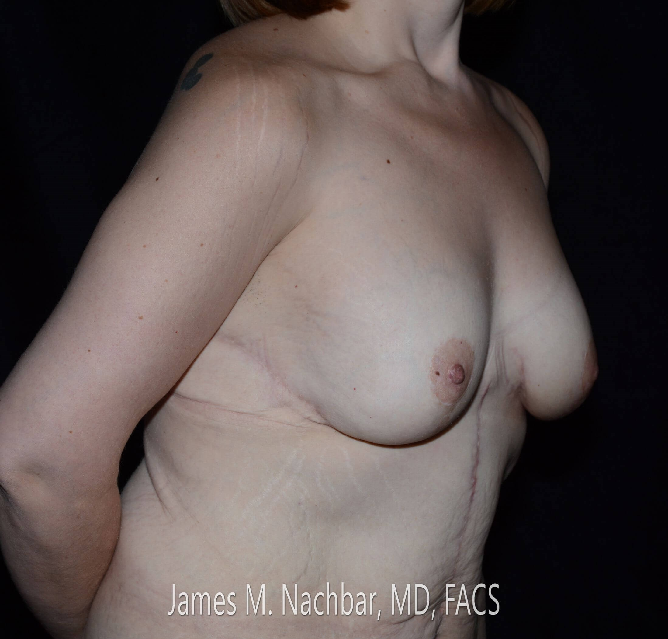 Angle View Breast 8 Months After