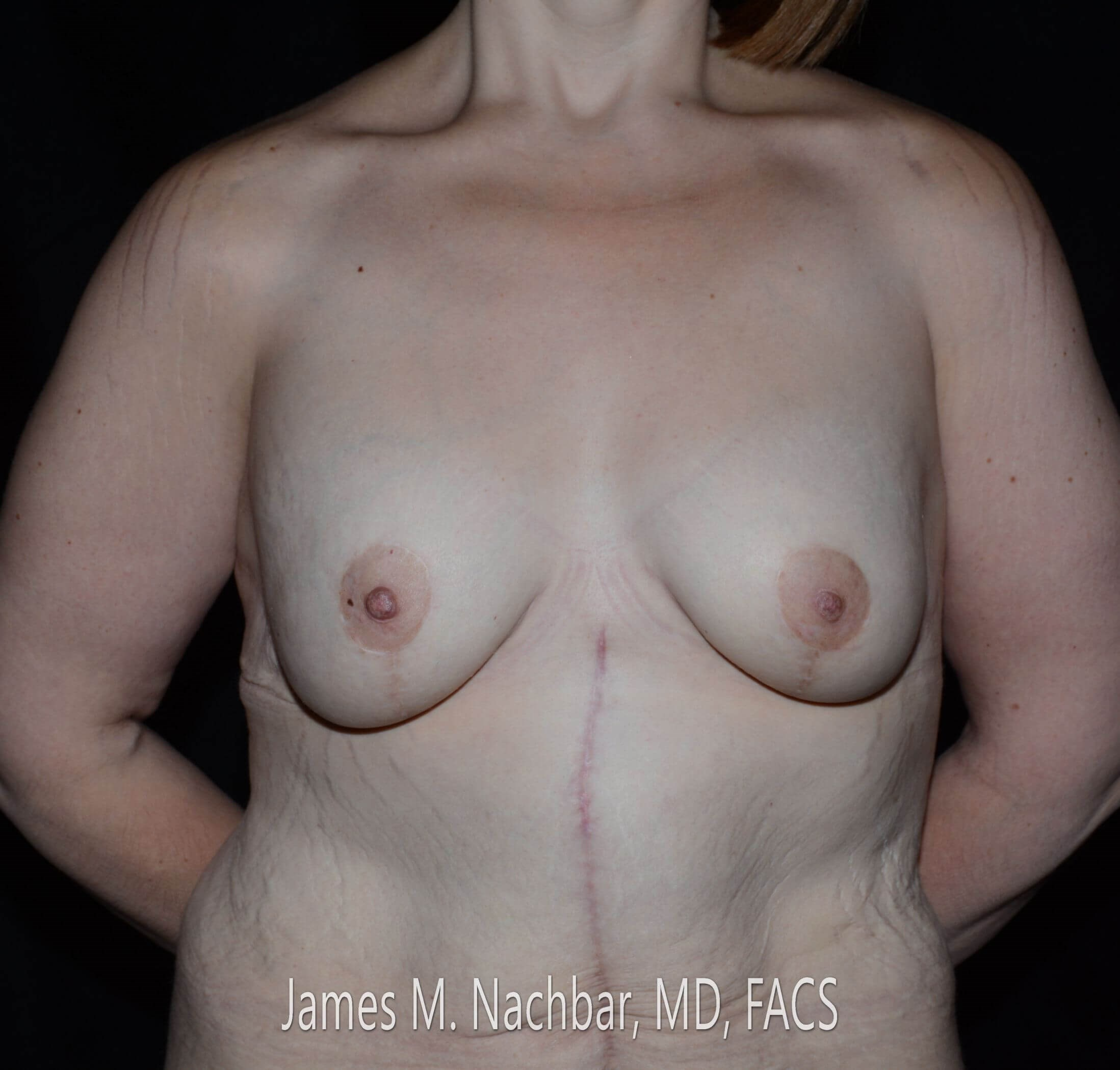 Front View Breast 8 Months After