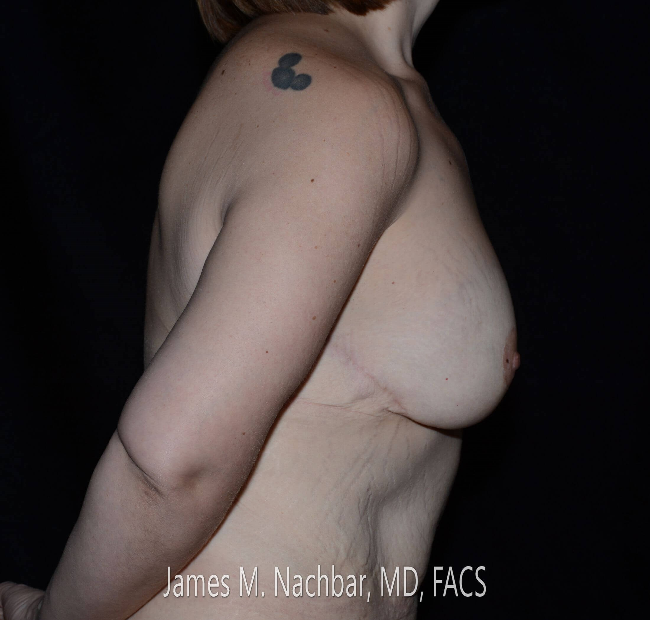 Side View Breast 8 Months After
