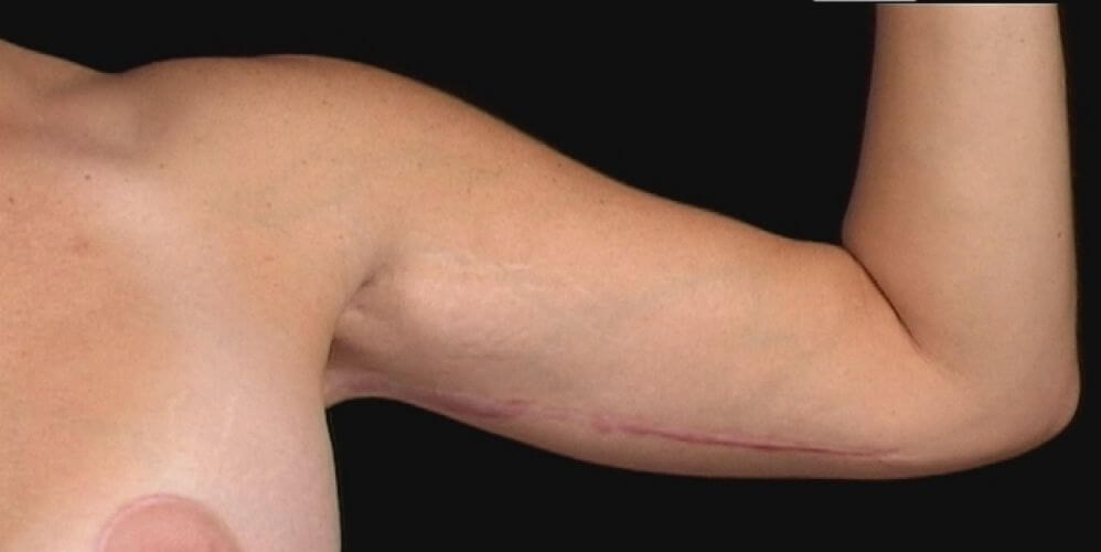 Left Arm, Front 1 Year After