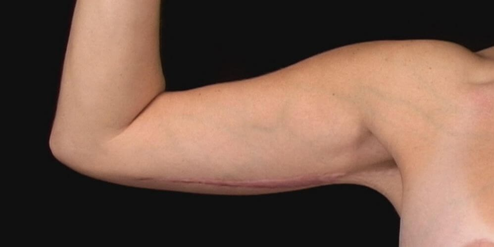 Right Arm, Front 1 Year After