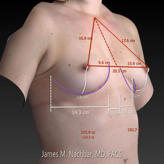 3-D Breast Measurements Oblique 3-D View