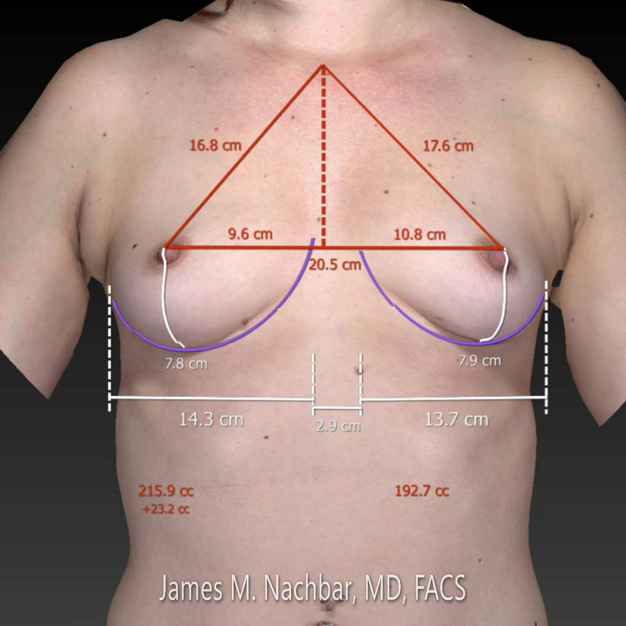 3-D Breast Measurements Front 3-D View