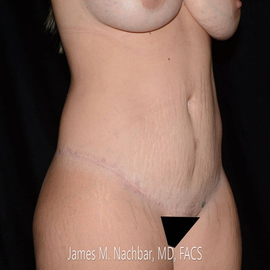 Oblique View 10 Months After