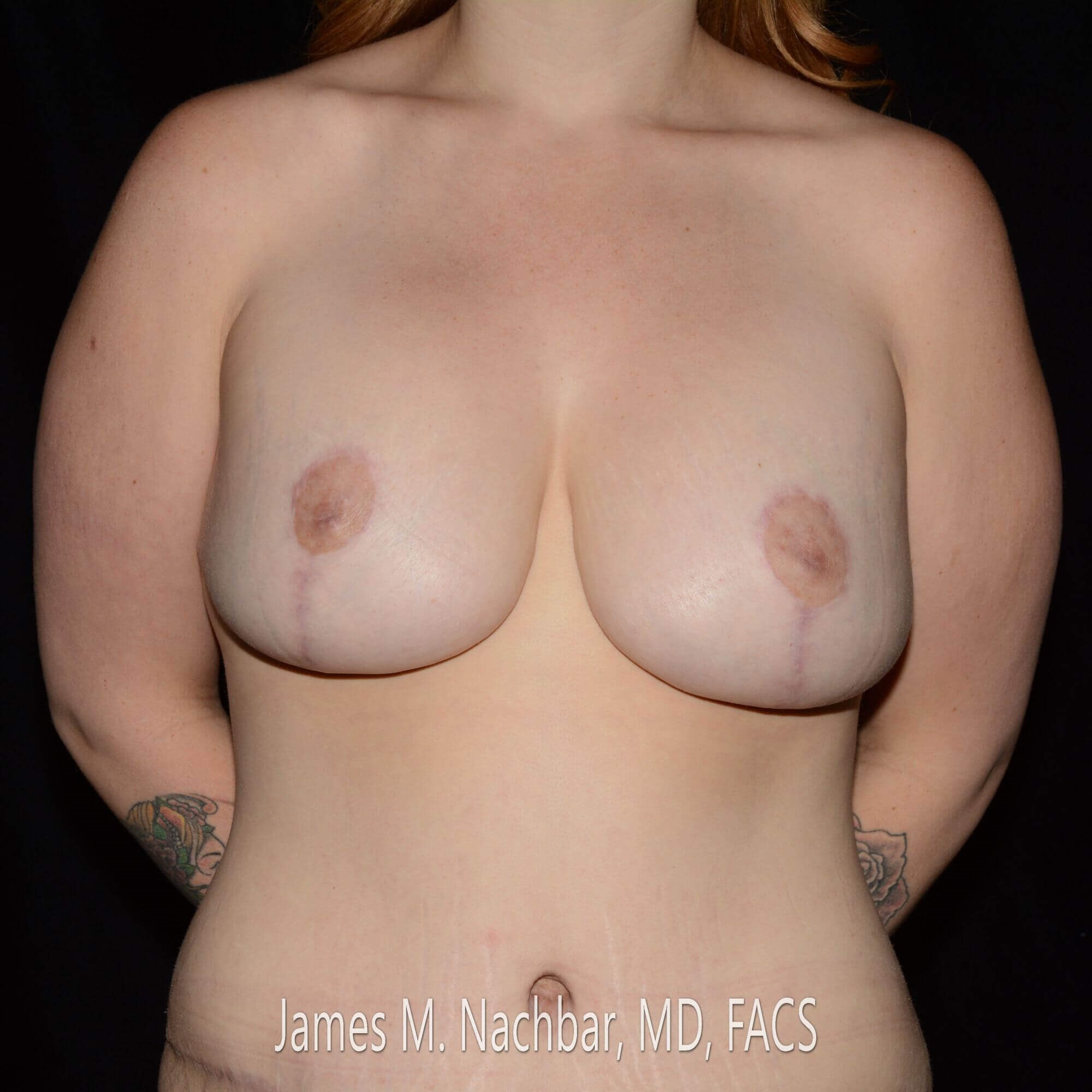 Front View, Breasts 5 Months After