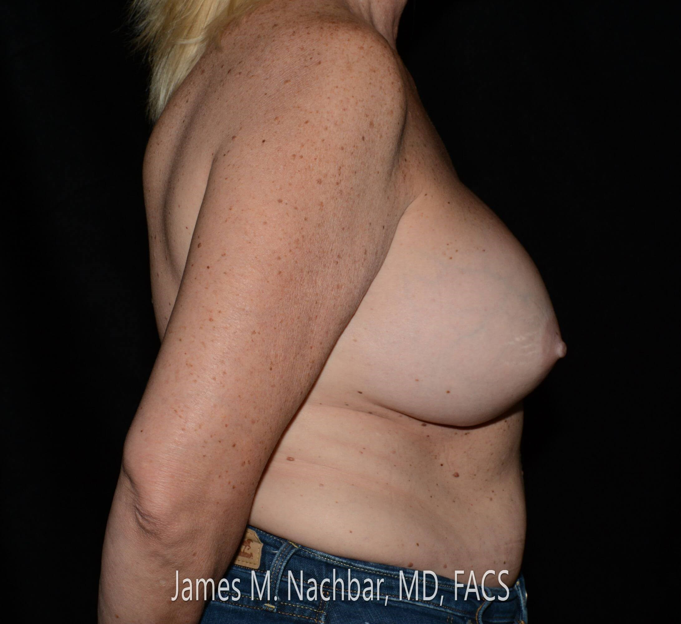 Side View Augmentation 13 Years After Augmentation