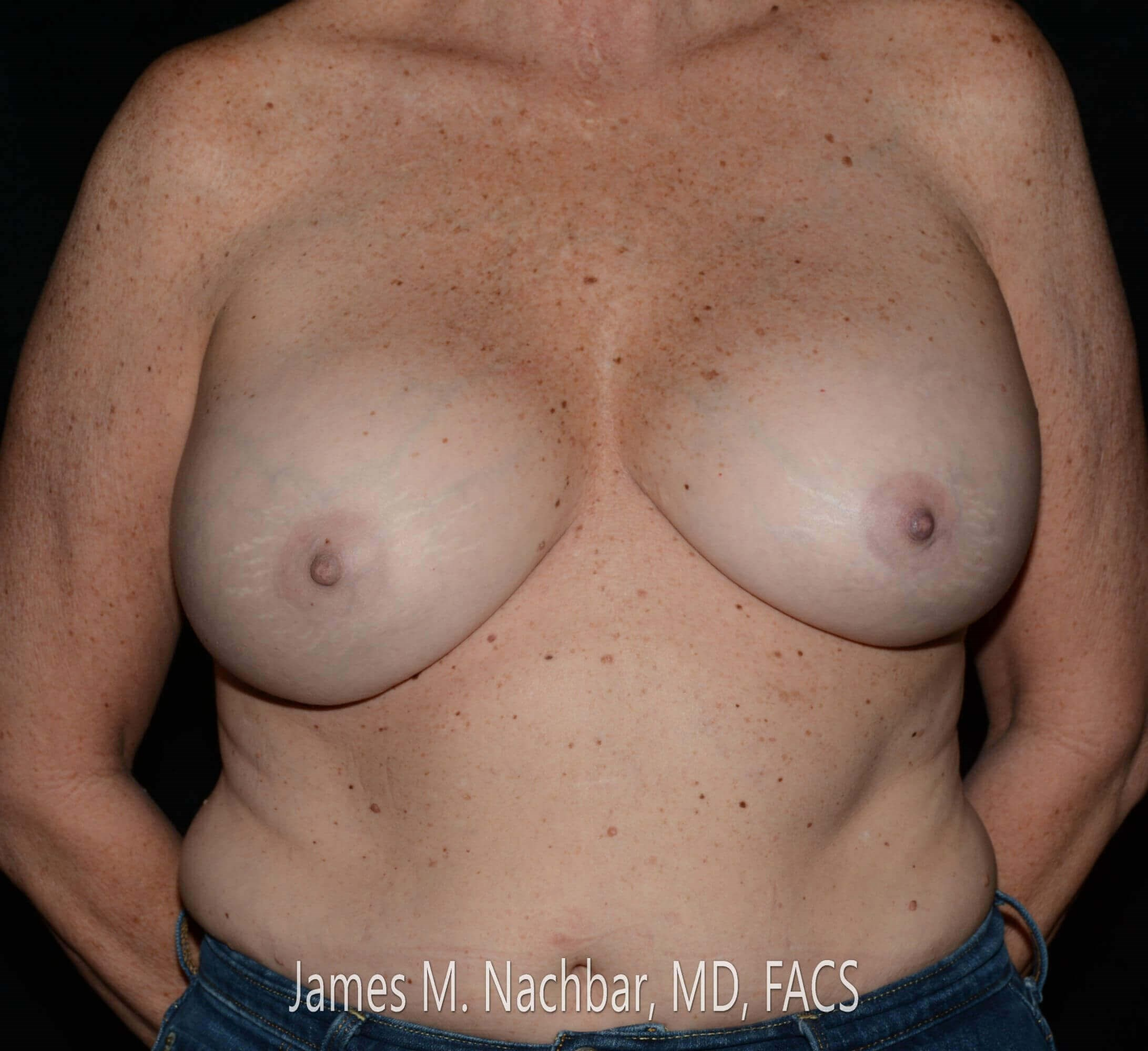 Front View Augmentation 13 Years After Augmentation