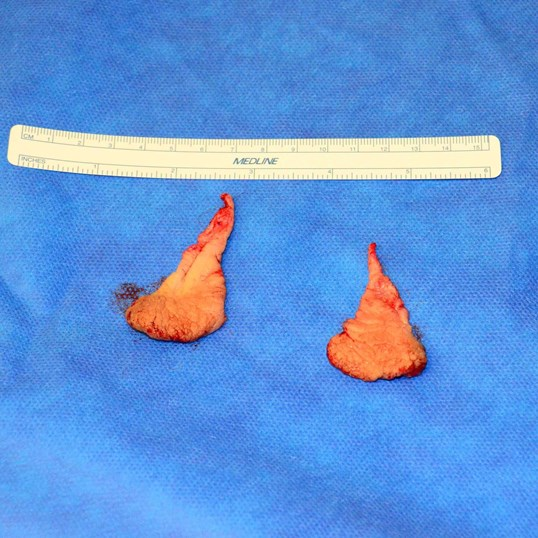 Close-Up and Surgical Tissue Removed