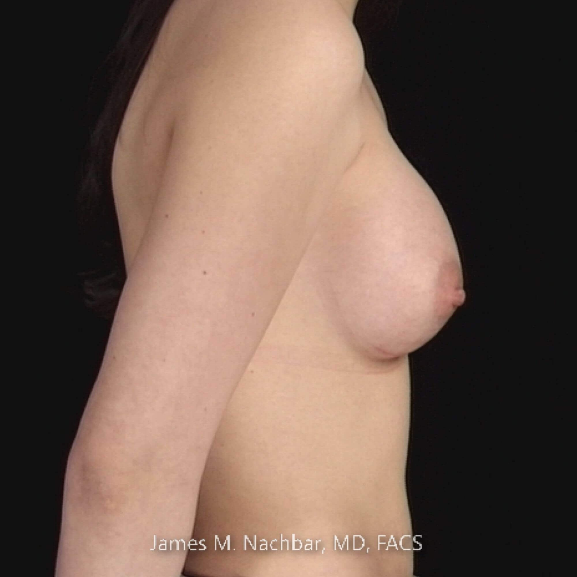 Side View, Augmentation 2 Months After