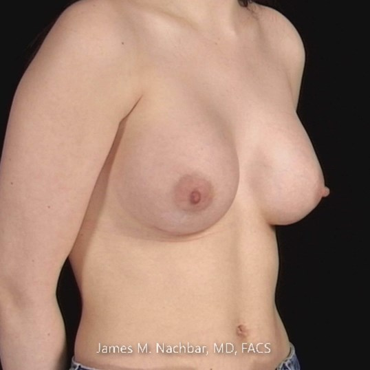 Oblique View, Augmentation 2 Months After