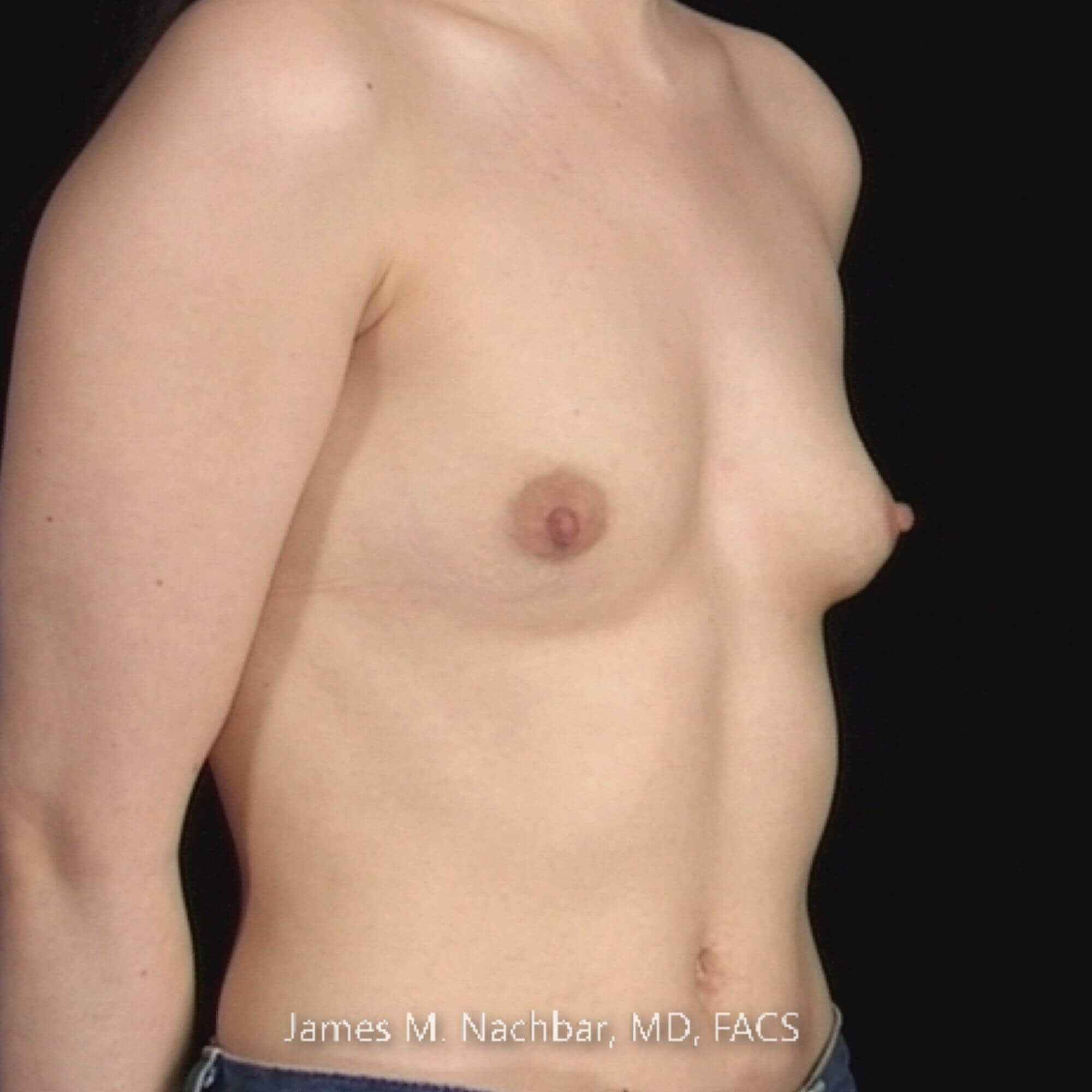 Oblique View, Augmentation Before