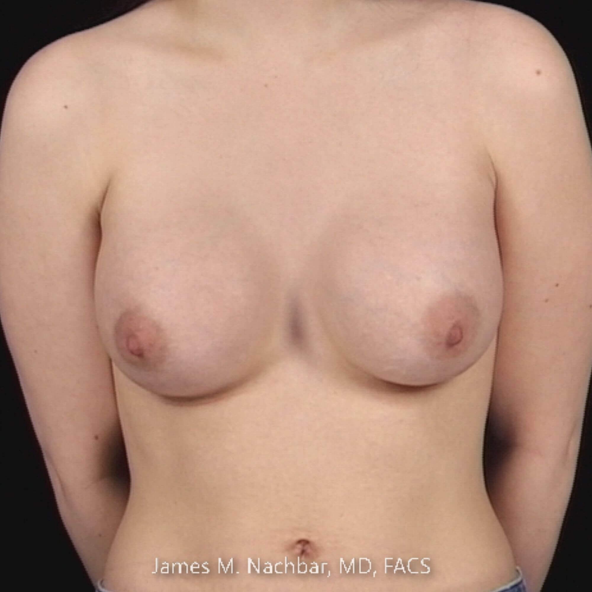Front View Augmentation 2 Months After