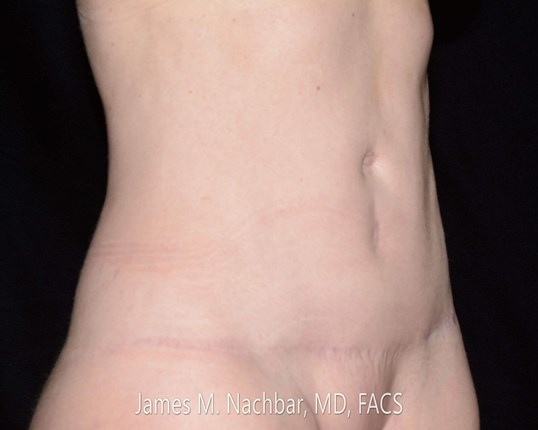 Oblique View 9 Months After