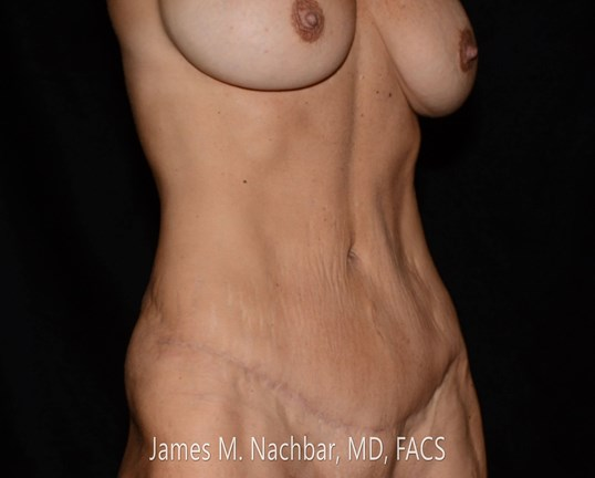 Oblique View 6 Months After