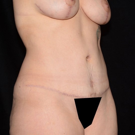 Oblique View 4 Months After
