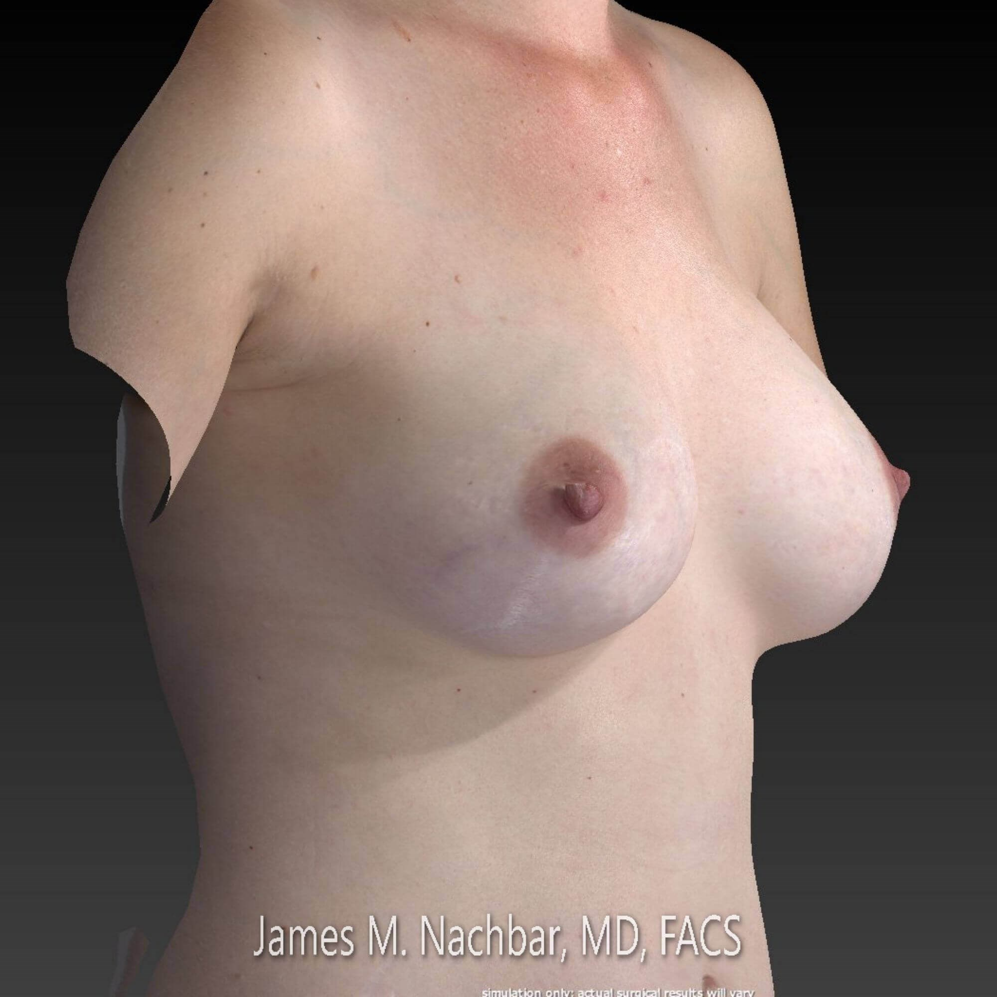 3D Surgery Simulation, oblique Simulation from pre-op 3D pic