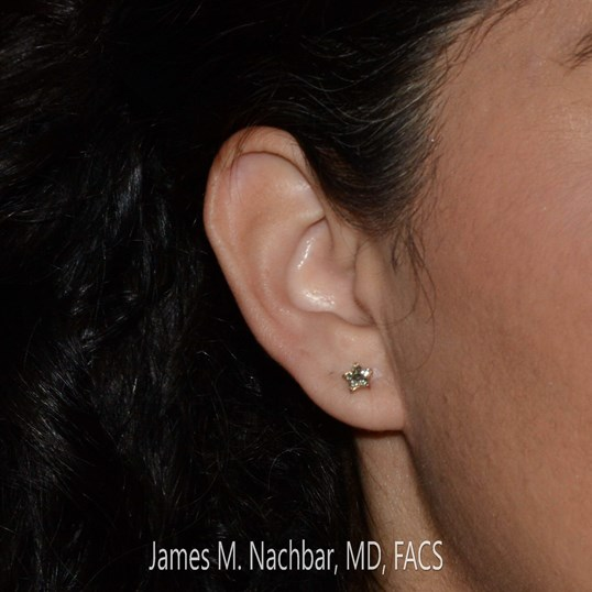 After Re-Piercing Right Ear with Earring