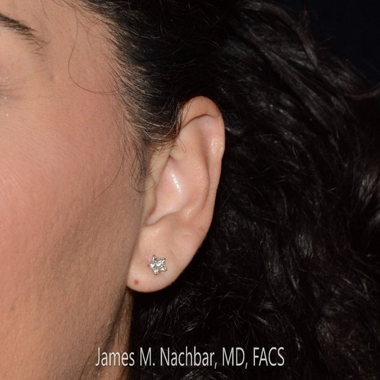 After Re-Piercing Left Ear with Earring