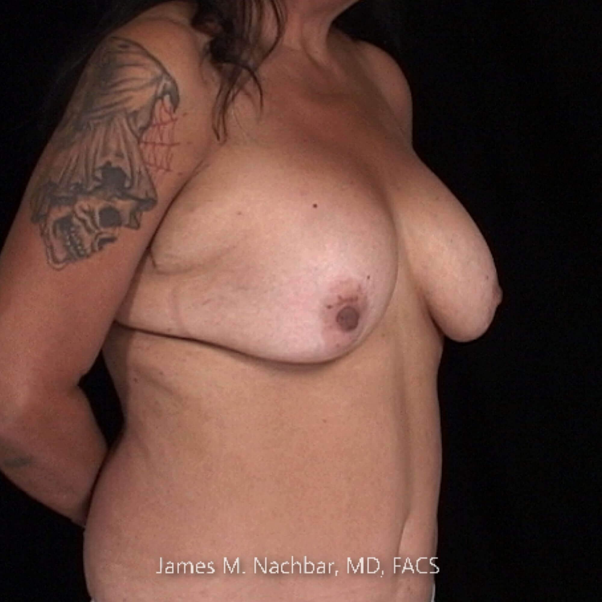 Oblique View 1 Year After Breast Aug.