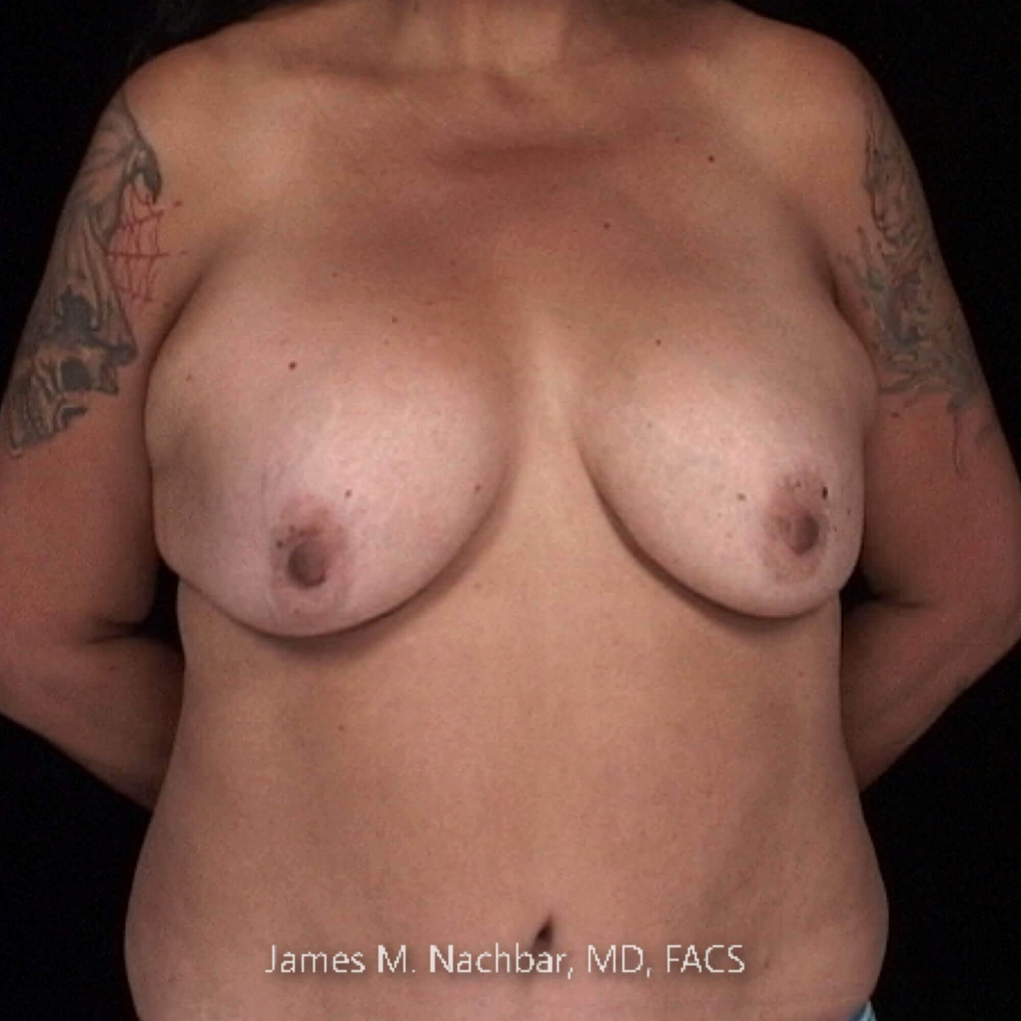 Front View 1 Year After Breast Aug.